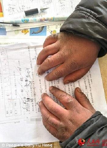 Bàn tay nứt nẻ vì lạnh của cậu bé Trung Quốc. Ảnh:Nhân dân Nhật báo.