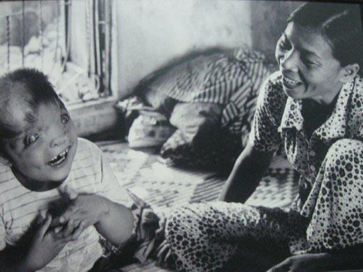 Một em bé bị tật bẩm sinh vì phơi nhiễm chất độc da cam. Ảnh: World Nomads Journals