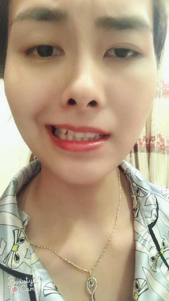 Cô gái bị liệt luôn dây thần kinh số 7 gây ra méo miệng.