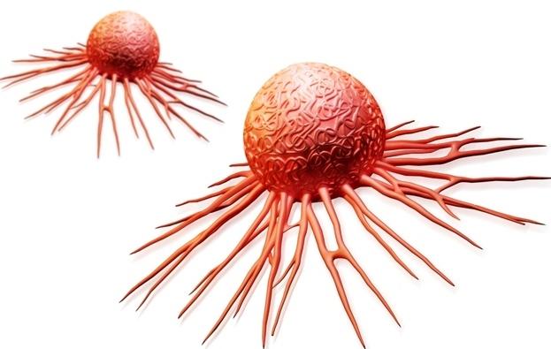Số người trên thế giới bị ung thư đang gia tăng nhanh chóng. Ảnh: minh họa
