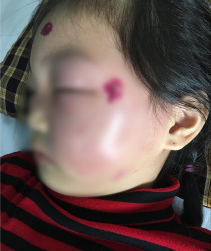 Khuôn mặt sưng phù của bé gái do nhiễm trùng huyết. BVCC