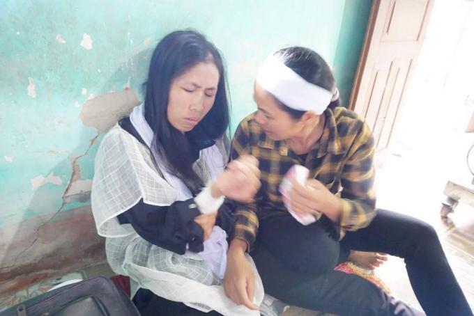 Chị Nguyệt trên tay còn thương tích đau đớn sau cái chết của chồng và con trai.