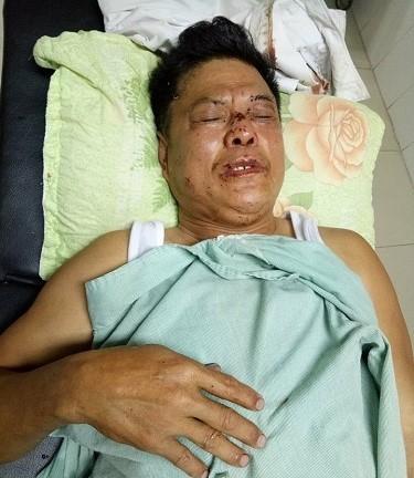 Ông Hòa được đưa đến bệnh viện điều trị sau khi bị bố con vị giám đốc đánh.