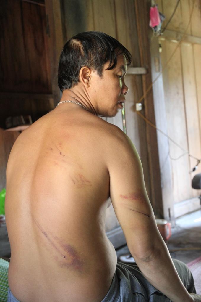 Những vết bầm tím trên người anh Hồ Văn Đan do bị bảo vệ mỏ vàng đánh đập