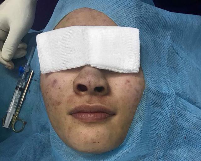 Mũi bệnh nhân có màu xanh do chỉ cấy màu xanh tạo ra (Ảnh do BS cung cấp)