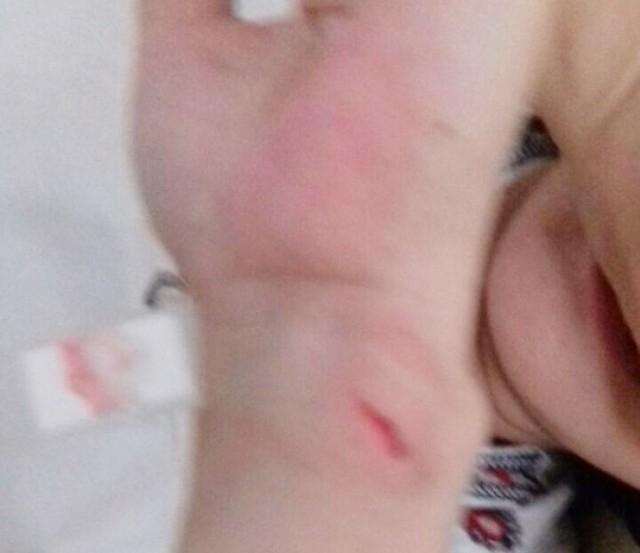 Nữ nhân viên thư viện đâm gây vết thương để phản ứng kết luận thanh tra.