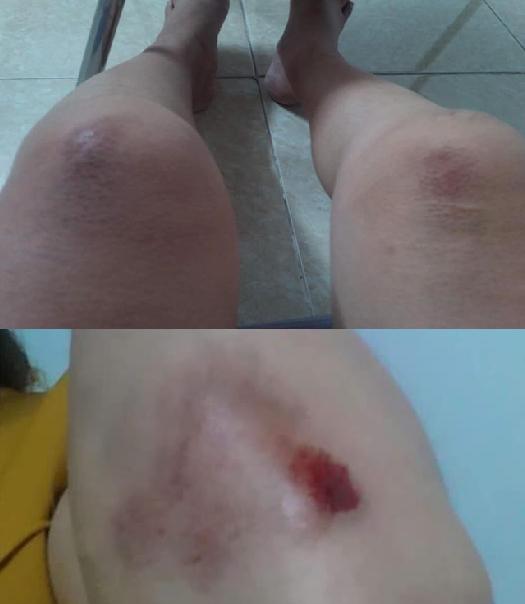 Chị Phương bị thương sau can ngăn xô xát giữa nam thanh niên đi xe SH và người em.