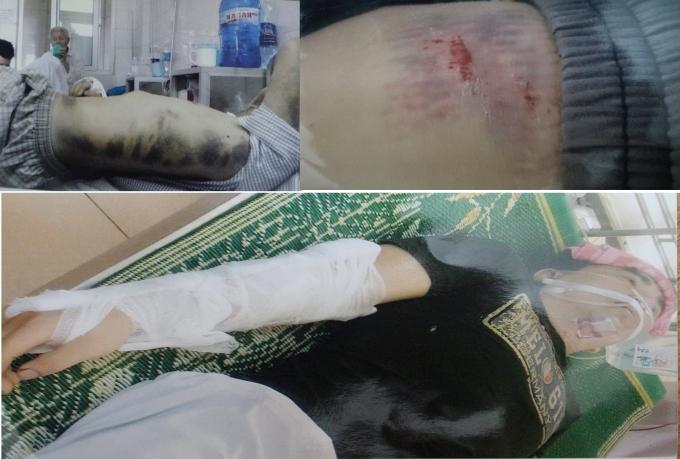 Nạn nhân bị đánh gãy cánh tay phải, dập lá lách độ 3, thiếu máu trầm trọng, toàn thân bầm tím,...
