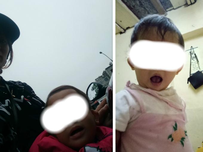 Cháu Lê Thị Thùy T. (hơn 1 tuổi) bị thâm ở 2 mắt và 1 số vết thương khác trên cơ thể sau khi rời Cơ sở mầm non Tràng An về nhà.