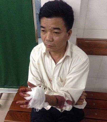 Ông Nguyễn Đoàn Bộ (bảo vệ công ty) tại cơ quan công an với vết tay bị chém.