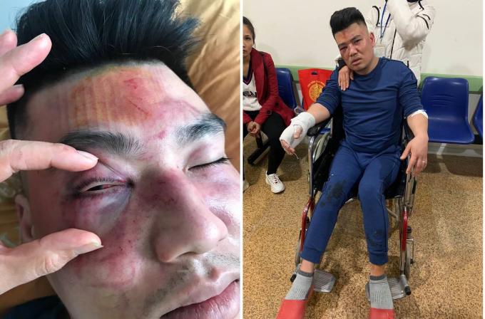 Hiện anh Tú đang được điều trị tại Bệnh viện Đa khoa tỉnh Yên Bái.