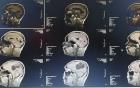 Phẫu thuật thành công ổ sán làm tổ trong não người đàn ông