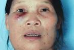 Hưng Yên: Mâu thuẫn về đất đai, vợ chồng già bị hàng xóm đe dọa, đánh đập phải nhập viện