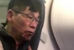United Airlines đạt thỏa thuận bồi thường với David Dao