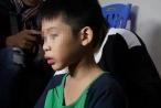 Chủ tịch Hà Nội chỉ đạo xử lý vụ người bố đánh con đến gãy răng, người chi chít vết thương