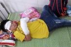 Nghệ An: Điện thoại phát nổ, bé trai 7 tuổi dập nát 2 bàn tay
