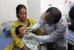 Phẫu thuật miễn phí cho trẻ dị tật khe hở môi, vòm họng