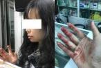 Nữ hành khách bị tài xế Uber đánh bầm mặt còn bị 'khủng bố' tinh thần