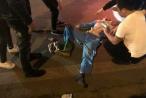 Hà Nội: Nam công nhân môi trường bị xe máy tông nguy kịch