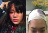 Hà Nội: Xôn xao hình ảnh cô gái bị hai nam thanh niên trêu ghẹo, đánh vỡ đầu