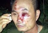 Hà Nội: Bảo vệ chung cư Linh Đàm bị nhóm côn đồ hành hung nhập viện