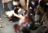Hé lộ chân dung nghi phạm đâm cô gái trọng thương trên phố Bùi Thị Xuân?