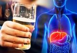 Ung thư gan, cái kết đau đớn của những 'sâu rượu'