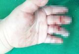 Cháu bé 16 tháng tuổi dập nát ngón tay do bị cuốn vào máy xay cá