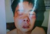 Kỳ 5 - Lâm Đồng: Bị cáo suy giảm sức khỏe nghiêm trọng, có dấu hiệu vi phạm tố tụng?
