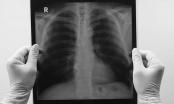 Vì sao không hút thuốc vẫn bị ung thư phổi?