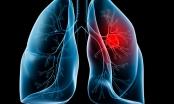 Phương pháp mới giúp phát hiện sớm ung thư phổi