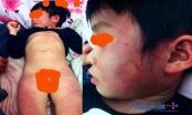 Bắc Giang: Cháu bé bị thâm tím toàn thân, gia đình nghi bị bạo hành ở lớp