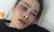 Đà Nẵng: Giành ăn với phụ nữ, nam thanh niên đánh nạn nhân nhập viện