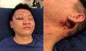 Hà Nội: Đưa con đi công viên, bị nhóm người lạ đánh bất tỉnh