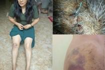 Bắc Ninh: Nửa đêm vô cớ xông vào nhà, hành hung người dã man