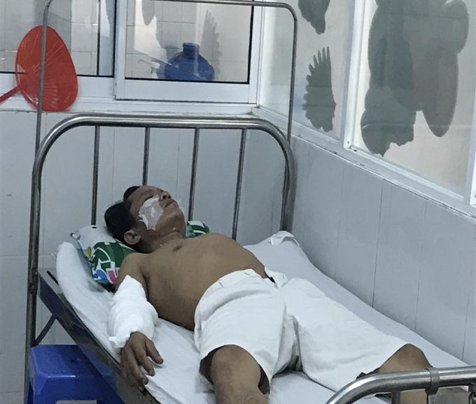 Một trong 4 công nhân đang nằm điều trị tại bệnh viện. Ảnh: TT.