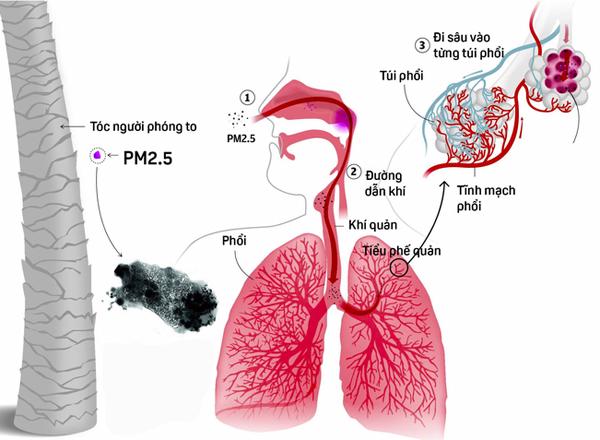 Bụi PM2.5 có thể xâm nhập sâu vào cơ thể
