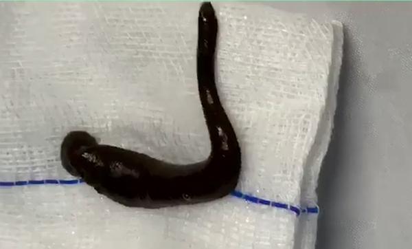 Con đỉa trâu được gắp ra khỏi khí quản bệnh nhân