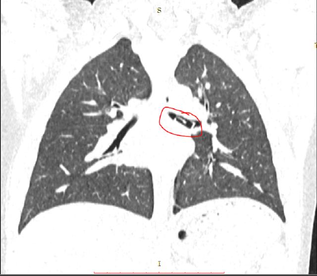Hình ảnh kiểm tra phát hiện dị vật nằm trong phế quản của bệnh nhi