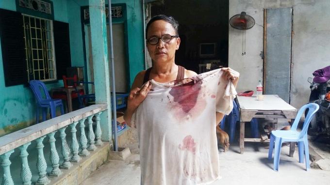 Chiếc áo của ông Lộc mặc khi bị đánh dính đầy máu.