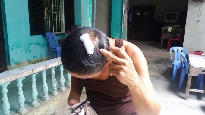Ông Lộc bị một vết thương lớn ở đầu.