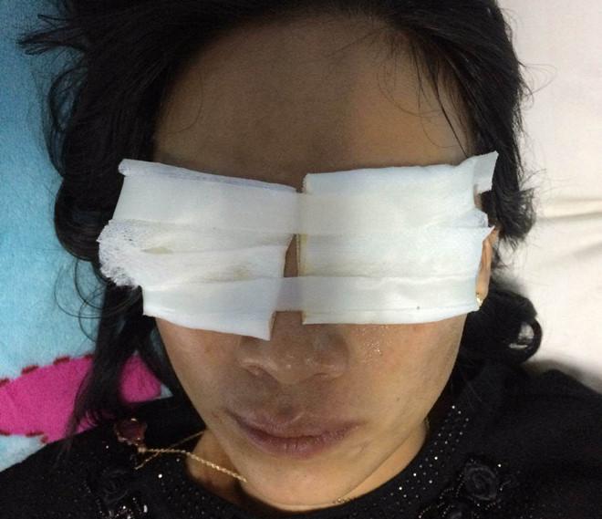 Chị H. bị mẹ chồng tạt a xít vào mặt. (Ảnh. Zing)