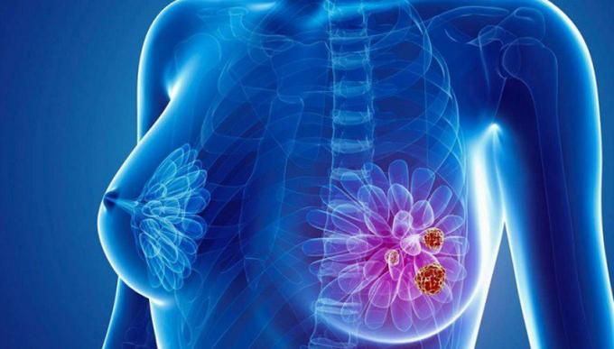 Ung thư vú - căn bệnh dễ gặp ở nữ giới