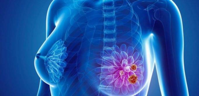 Ung thư vú đã và đang là căn bệnh gây trắc trở hàng đầu ở nữ giới.
