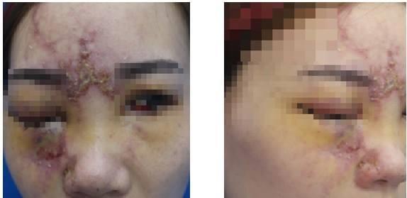 Bệnh nhân mất thị lực mắt phải và đau nửa đầu phải