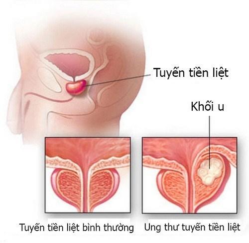 benh-ung-thu-tuyen-tien-liet-1
