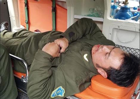 Anh Nguyễn Văn Điệp sau khi bị hành hung.