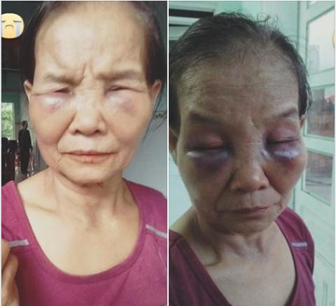 Hình ảnh được cho là bà T. bị con dâu đánh thâm tím 2 mắt. Ảnh: FB