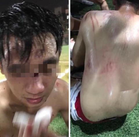 Hình ảnh một người bị thương nặng.