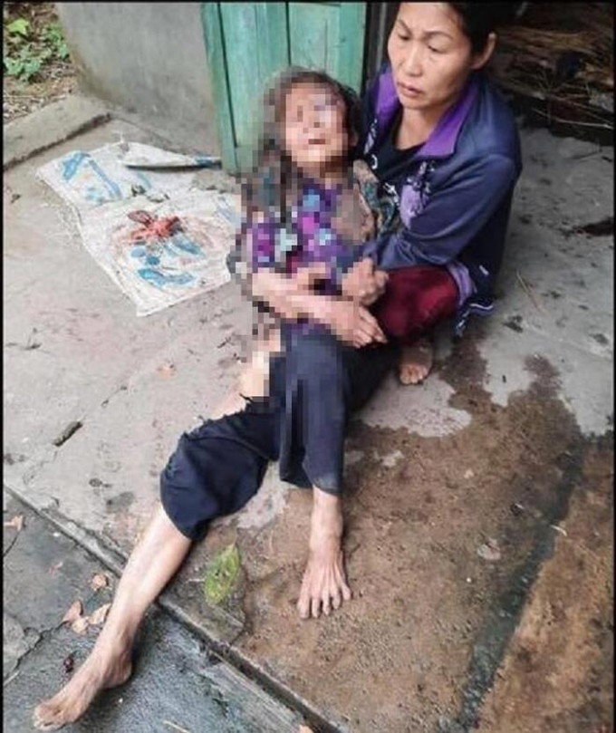 Cụ bà Chu Thị Mạo bị đa chấn thương.